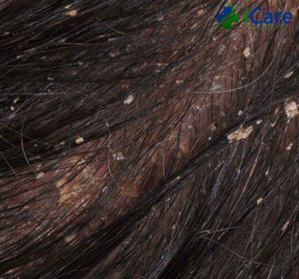 cách trị nấm tóc