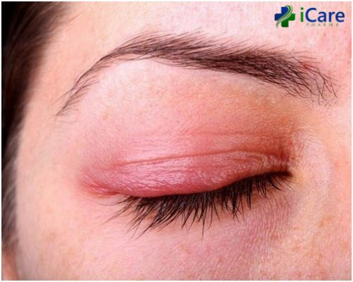 bệnh eczema